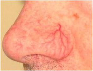 Tratamentul adenomiozei cu varice